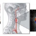 aparat usg dla neurologa